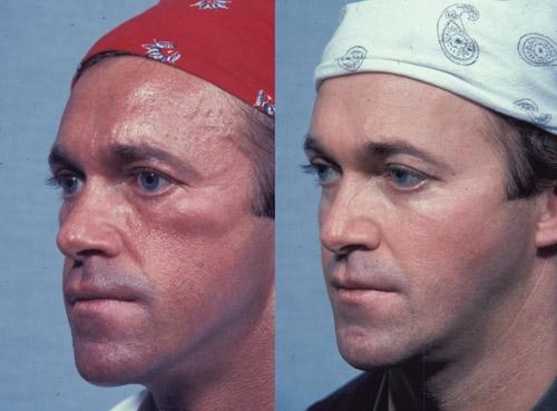 Custom facial implants